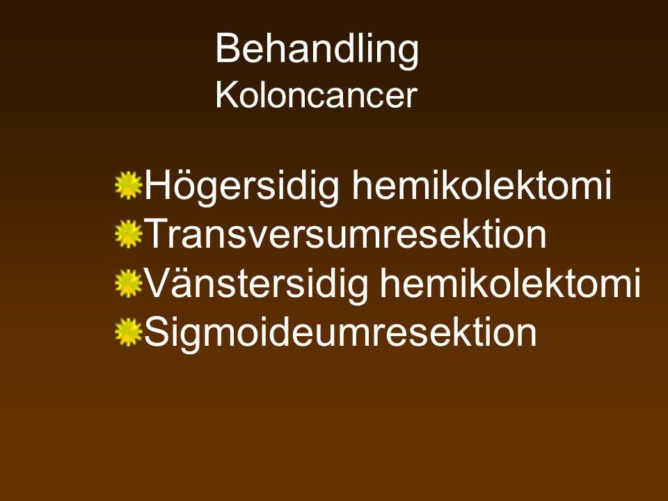 Koloncancer Högersidig hemikolektomi Transversumresektion Vänstersidig hemikolektomi Sigmoideumresektion