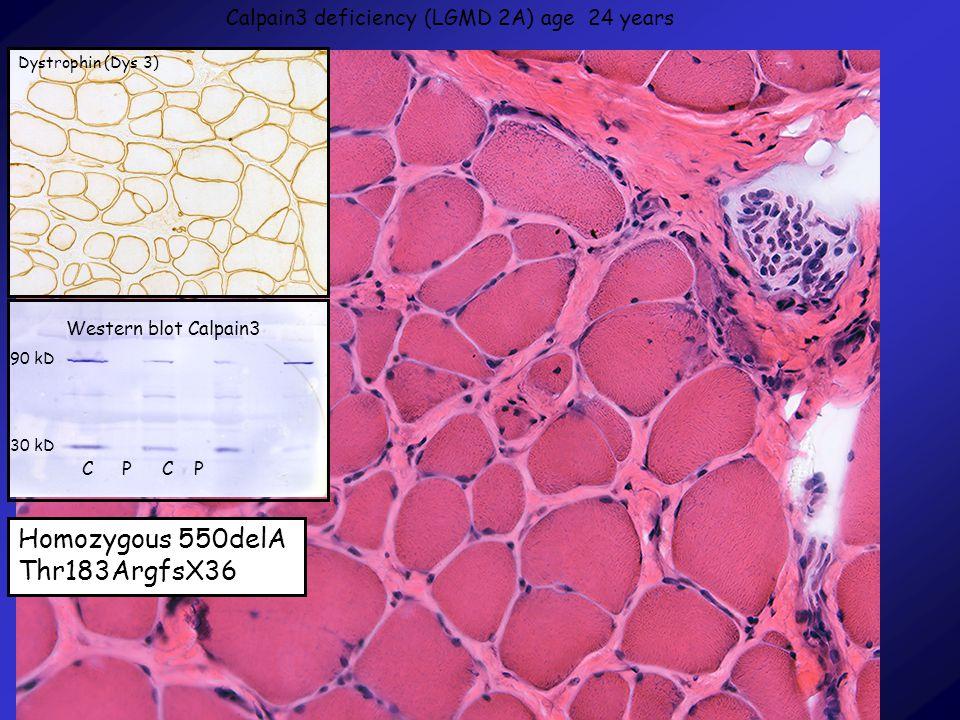 Calpain3 deficiency (LGMD 2A) age 24 years Homozygous 550delA Thr183ArgfsX36 Dystrophin (Dys 3) Western blot Calpain3 CPCP 90 kD 30 kD