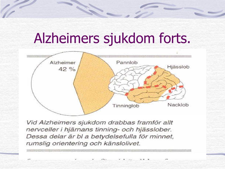 Alzheimers sjukdom forts.