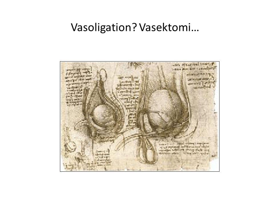 Vasoligation? Vasektomi…