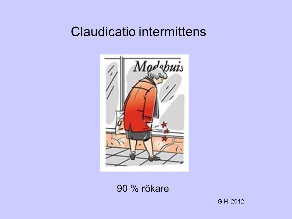 Claudicatio intermittens 90 % rökare G.H. 2012