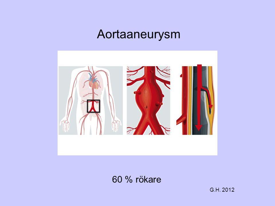 Aortaaneurysm 60 % rökare G.H. 2012