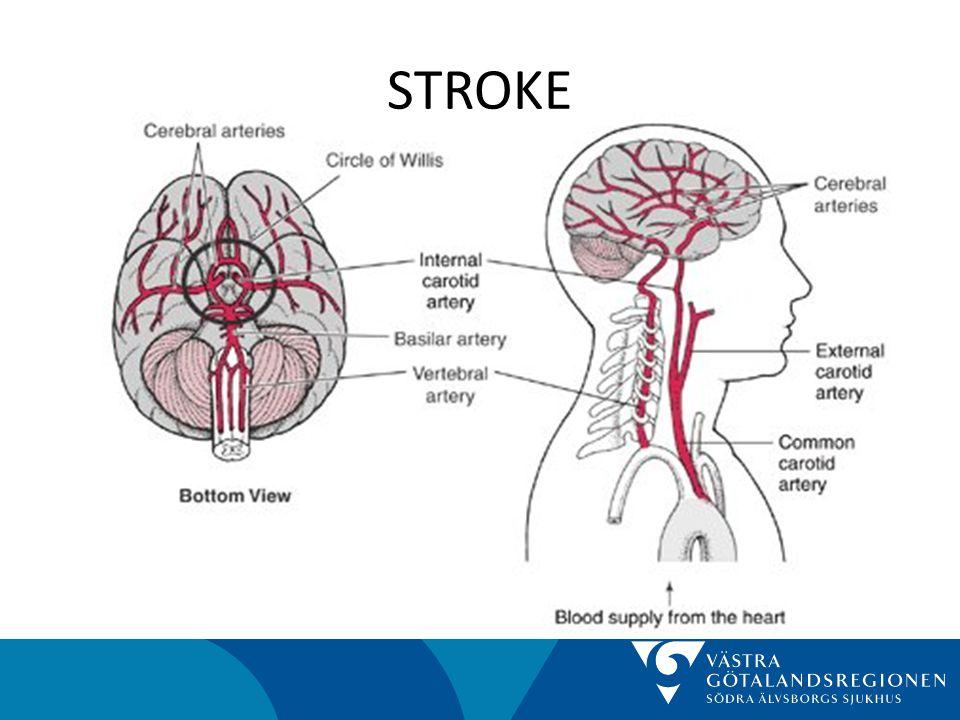 STROKE • Sammafattning – Folksjukdom – Mänskligt lidande - handikapp – Dyrt för samhället – Viktigt med fungerande vårdkedja