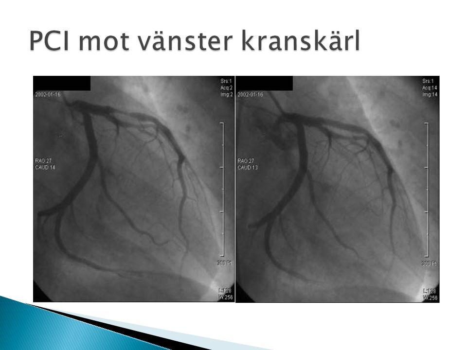 Kranskärlsoperation, CABG CABG=coronary artery bypass grafting ACB= arterial coronary bypass