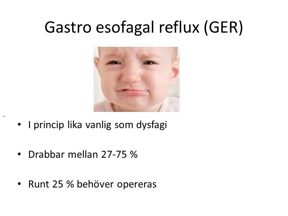 Gastro esofagal reflux (GER) • I princip lika vanlig som dysfagi • Drabbar mellan 27-75 % • Runt 25 % behöver opereras