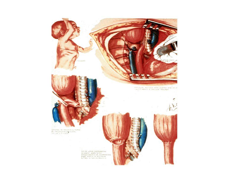 Malmström et al -08 • 27 patienter 9-19 år • Gross C – 21 tracheomalaci av varierande grad • 7 aortopexi, 10 antirefluxkirurgi • 11 symptom (varav 7 matstrupssymptom), 6 väsningar, DDA 6 • 14 pneumonianamnes (fann dock inget samband med tracheomalaci, matstrupsbesvär eller lungfunkt u.s.) • 8 restriktiva, 7 obstruktiva och 10 normala