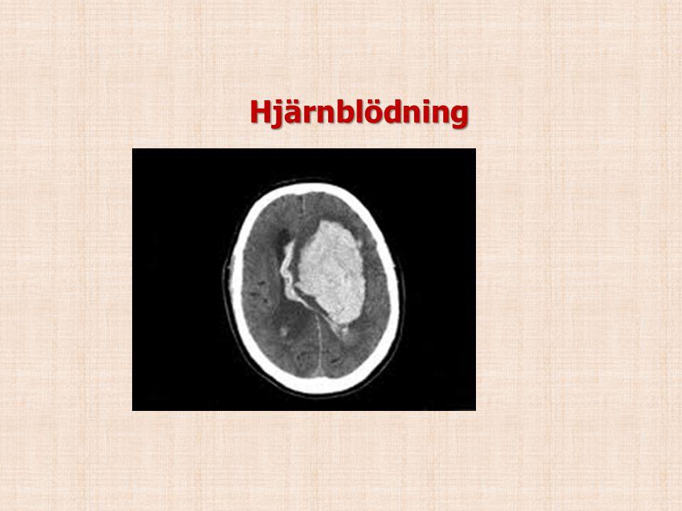 Hjärnblödning