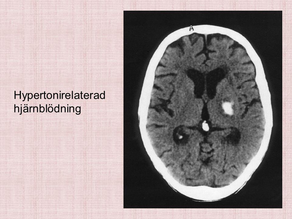 Hypertonirelaterad hjärnblödning