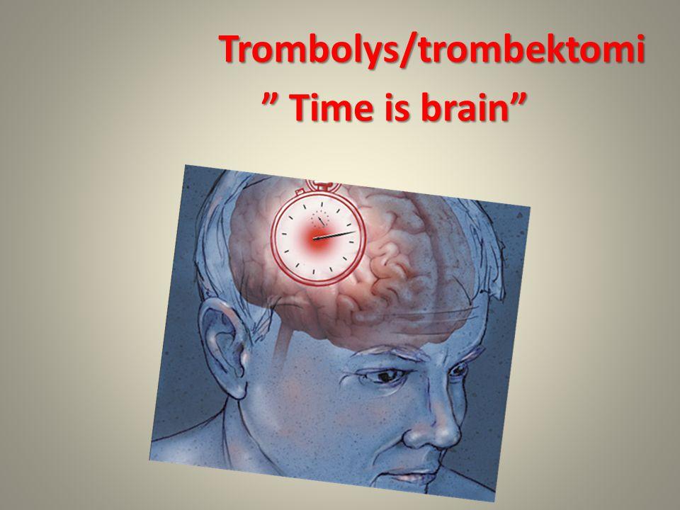 "Trombolys/trombektomi "" Time is brain"""