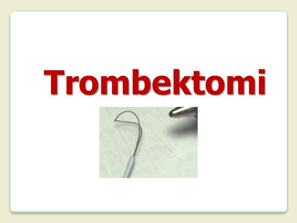 Trombektomi