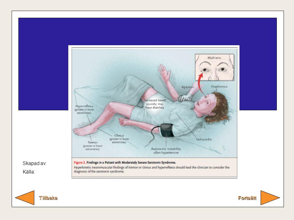 Serotonin syndromet Fortsätt Tillbaka Lurigt tillstånd om man inte har sett det.