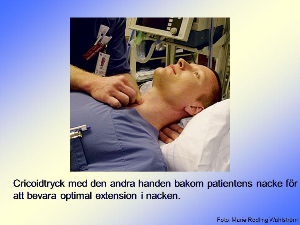 Cricoidtryck med den andra handen bakom patientens nacke för att bevara optimal extension i nacken. Foto: Marie Rodling Wahlström