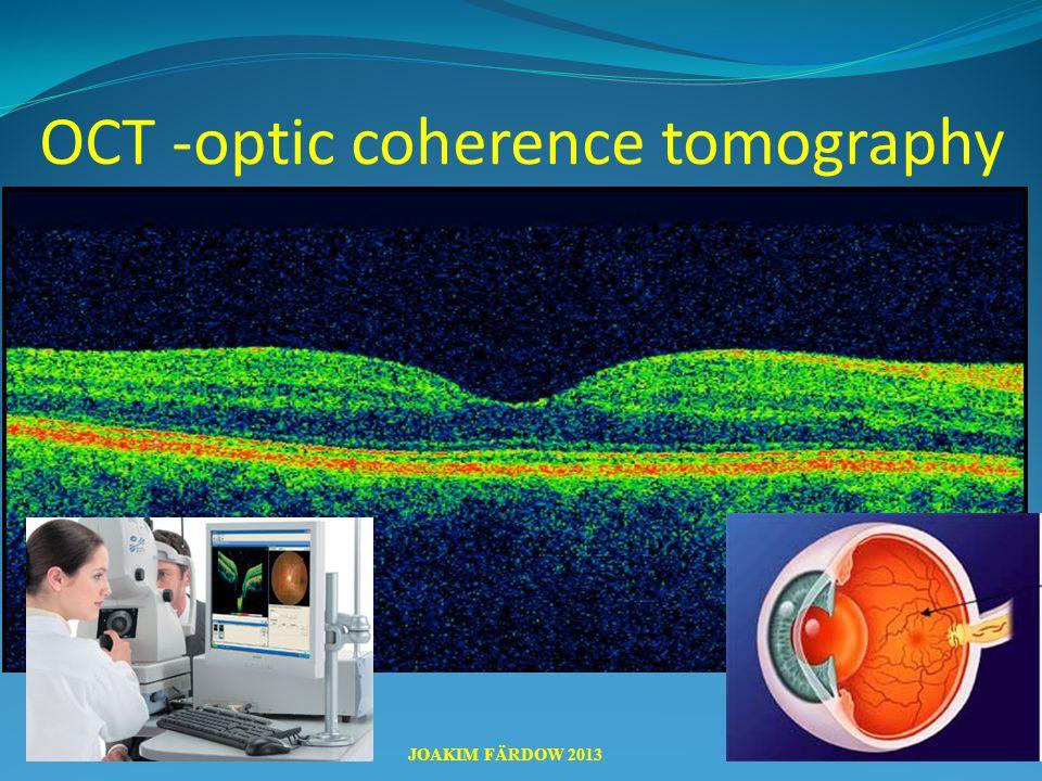 AMD JOAKIM FÄRDOW 2013 OCT -optic coherence tomography