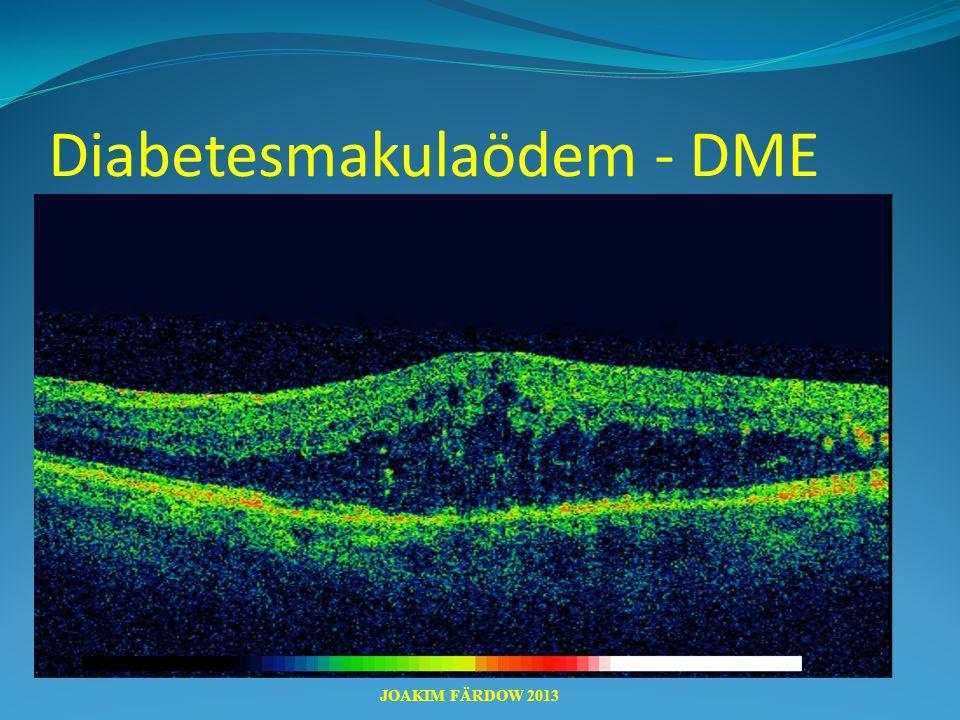 Diabetesmakulaödem - DME JOAKIM FÄRDOW 2013
