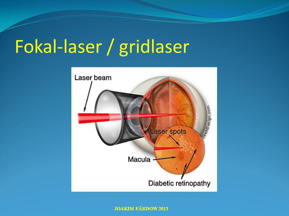 Fokal-laser / gridlaser JOAKIM FÄRDOW 2013