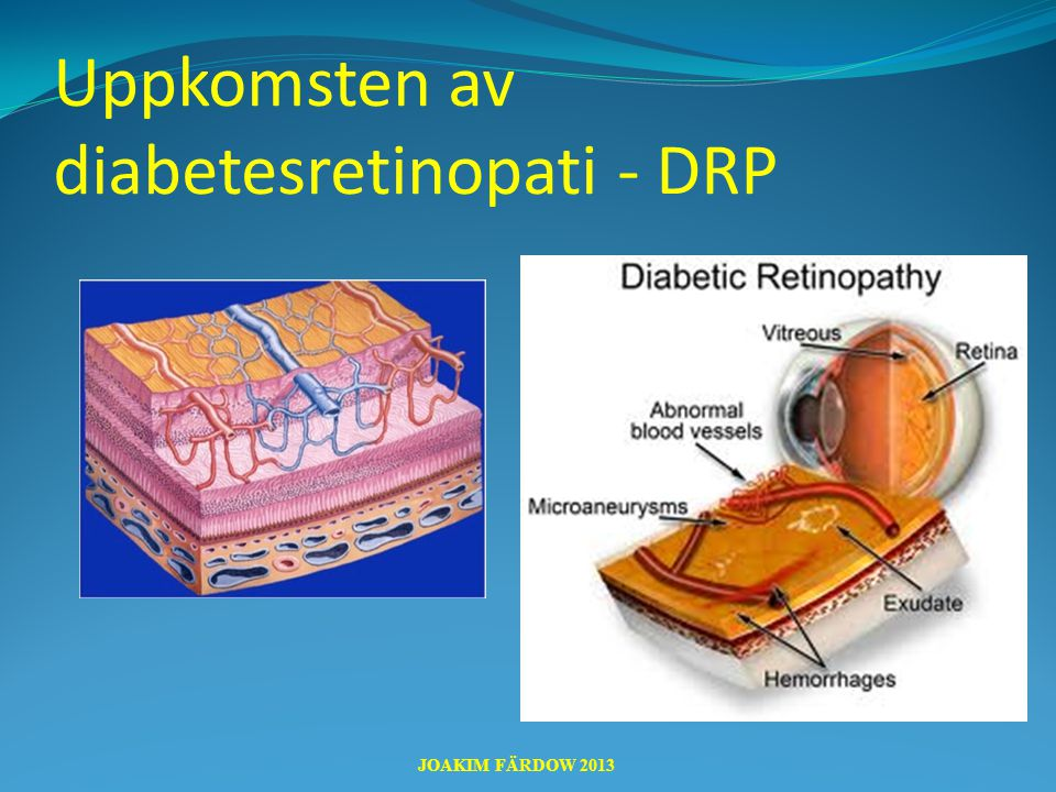 Uppkomsten av diabetesretinopati - DRP JOAKIM FÄRDOW 2013
