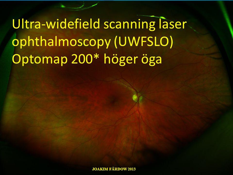 Ultra-widefield scanning laser ophthalmoscopy (UWFSLO) Optomap 200* höger öga JOAKIM FÄRDOW 2013