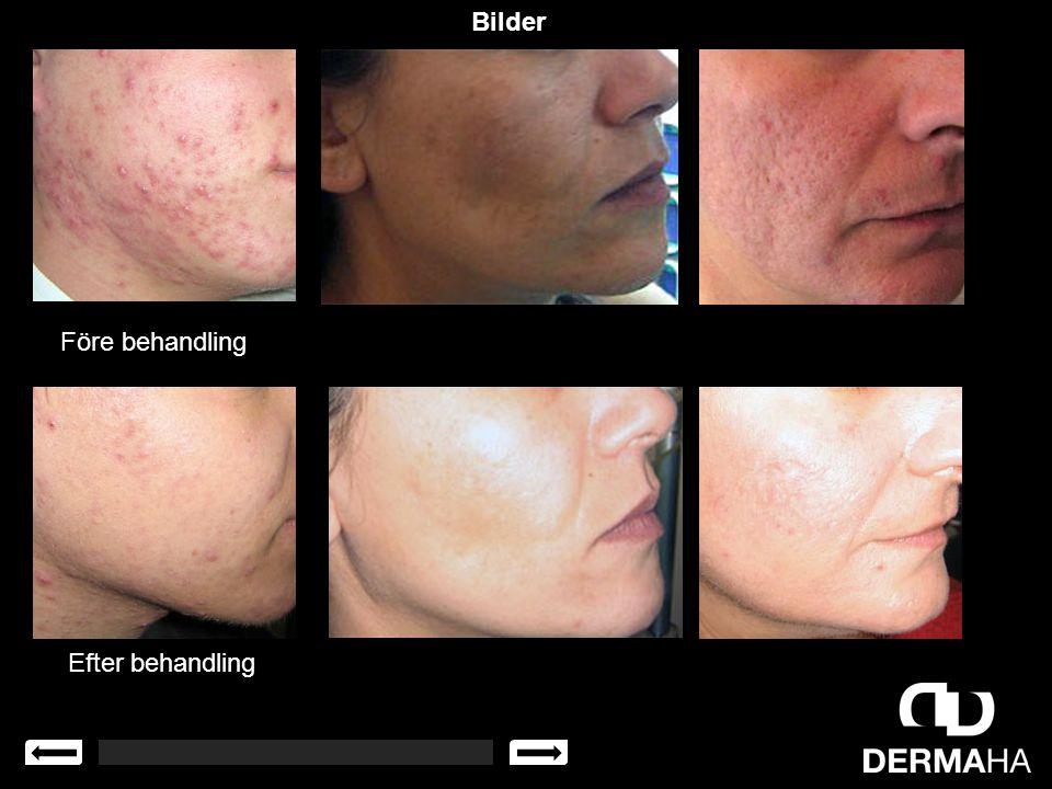 Bilder Före behandling Efter behandling