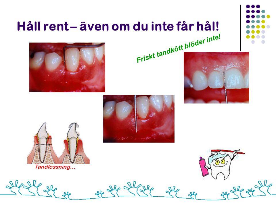 Håll rent – även om du inte får hål! Tandlossning… Friskt tandkött blöder inte!