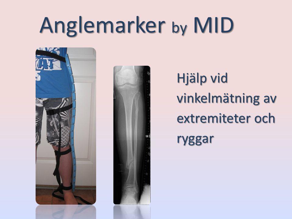 Anglemarker by MID Hjälp vid vinkelmätning av extremiteter och ryggar