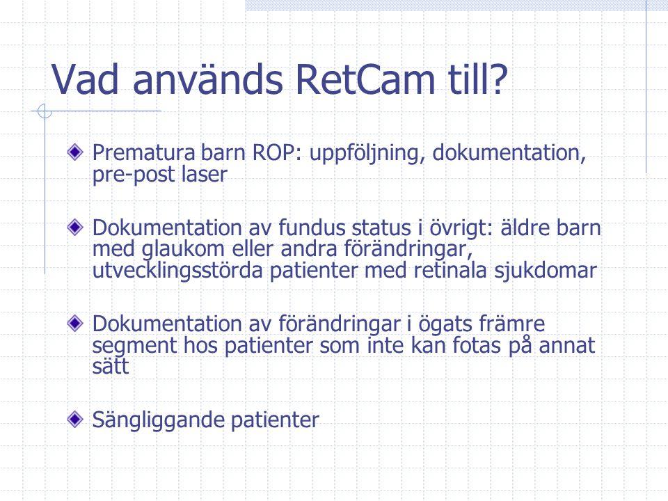 Vad används RetCam till? Prematura barn ROP: uppföljning, dokumentation, pre-post laser Dokumentation av fundus status i övrigt: äldre barn med glauko