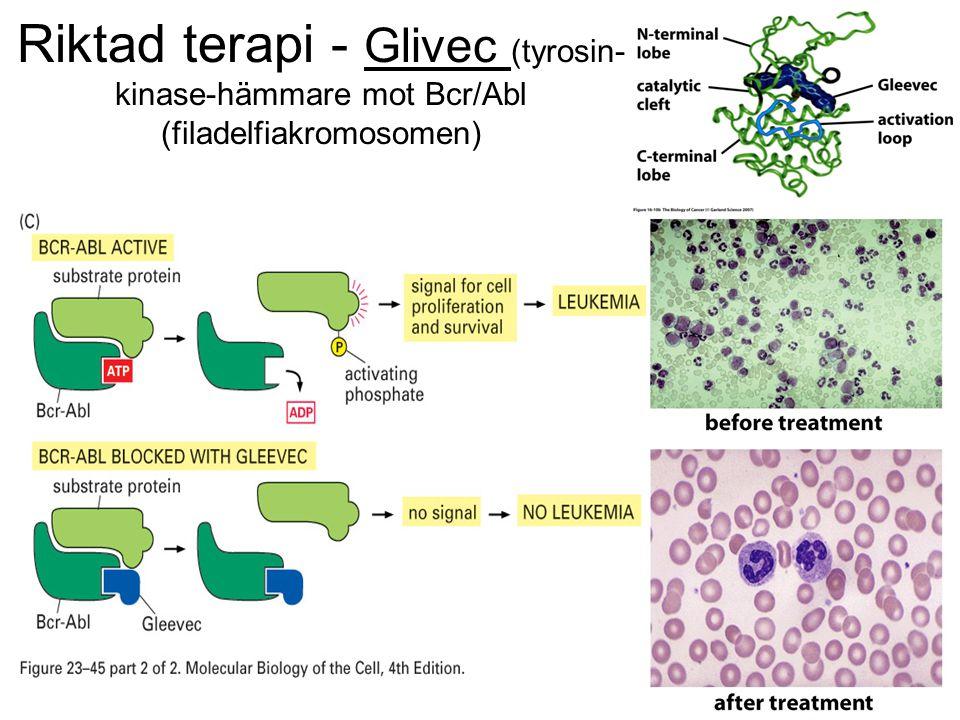 Riktad terapi - Glivec (tyrosin- kinase-hämmare mot Bcr/Abl (filadelfiakromosomen)
