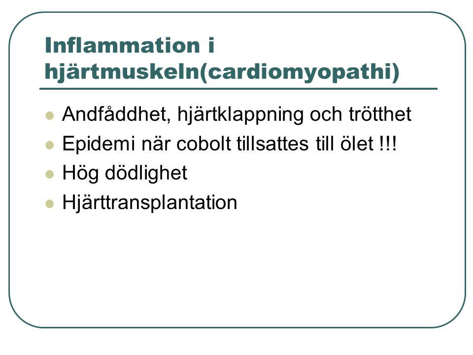Inflammation i hjärtmuskeln(cardiomyopathi)  Andfåddhet, hjärtklappning och trötthet  Epidemi när cobolt tillsattes till ölet !!!  Hög dödlighet 