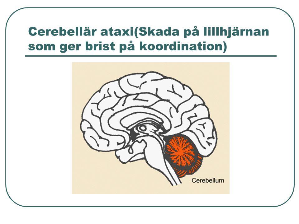 Cerebellär ataxi(Skada på lillhjärnan som ger brist på koordination)