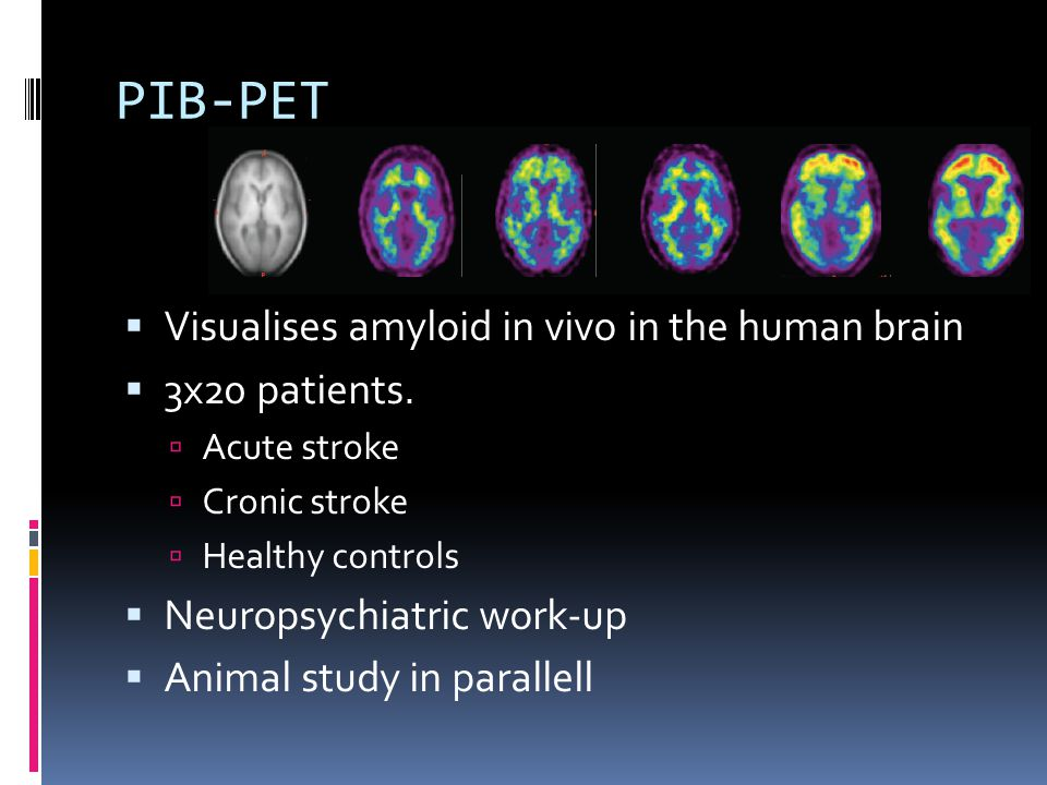 PIB-PET  Visualises amyloid in vivo in the human brain  3x20 patients.  Acute stroke  Cronic stroke  Healthy controls  Neuropsychiatric work-up