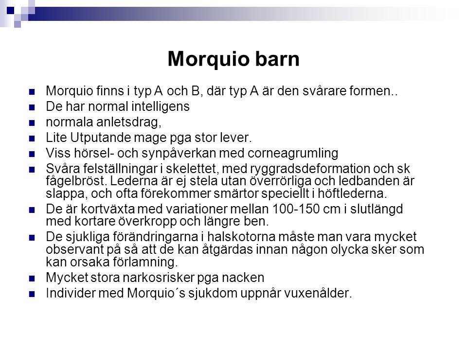 Morquio barn Morquio finns i typ A och B, där typ A är den svårare formen.. De har normal intelligens normala anletsdrag, Lite Utputande mage pga stor