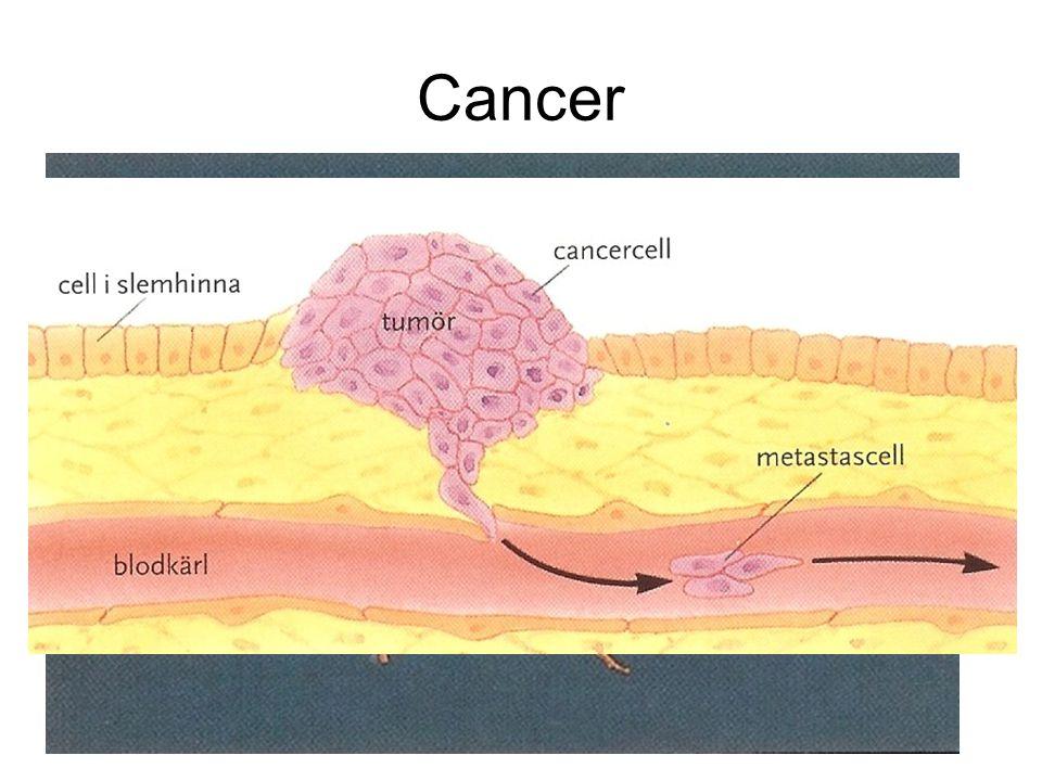 Cancer Den första cancercellen startar alltid i en vanlig frisk cell någonstans i kroppen. I en cancercell har generna tappat kontrollen över celldeln
