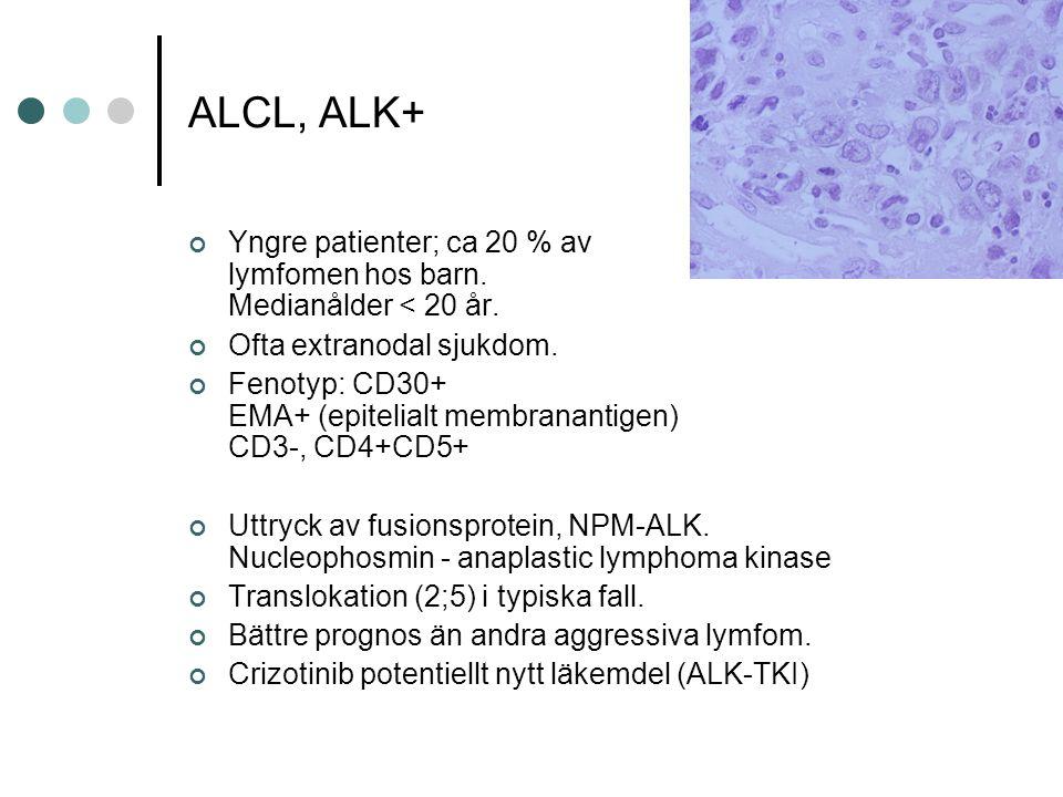 ALCL, ALK+ Yngre patienter; ca 20 % av lymfomen hos barn.