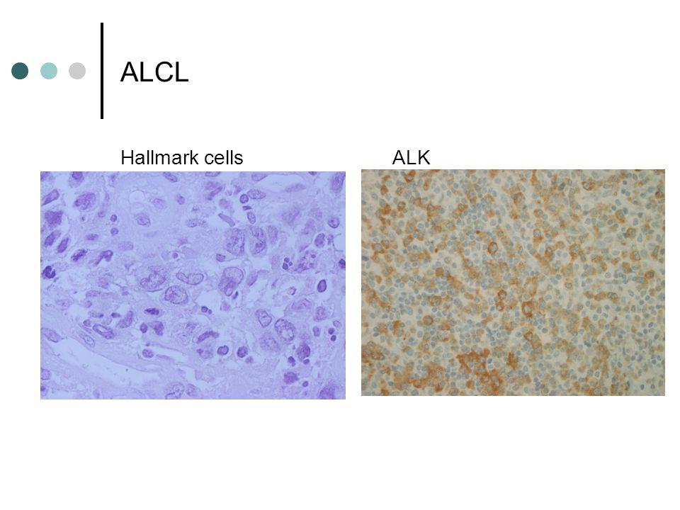ALCL Hallmark cellsALK