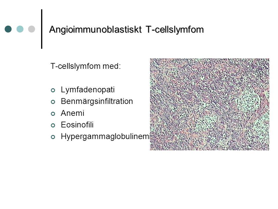 Angioimmunoblastiskt T-cellslymfom T-cellslymfom med: Lymfadenopati Benmärgsinfiltration Anemi Eosinofili Hypergammaglobulinemi