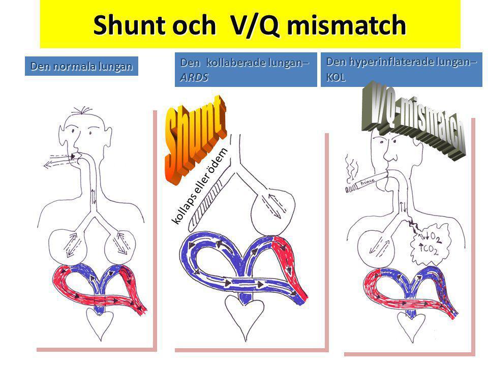 Shunt och V/Q mismatch Den kollaberade lungan– ARDS Den hyperinflaterade lungan– KOL Den normala lungan kollaps eller ödem