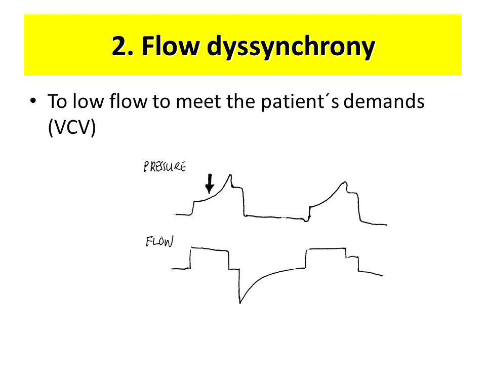 2. Flow dyssynchrony • To low flow to meet the patient´s demands (VCV)