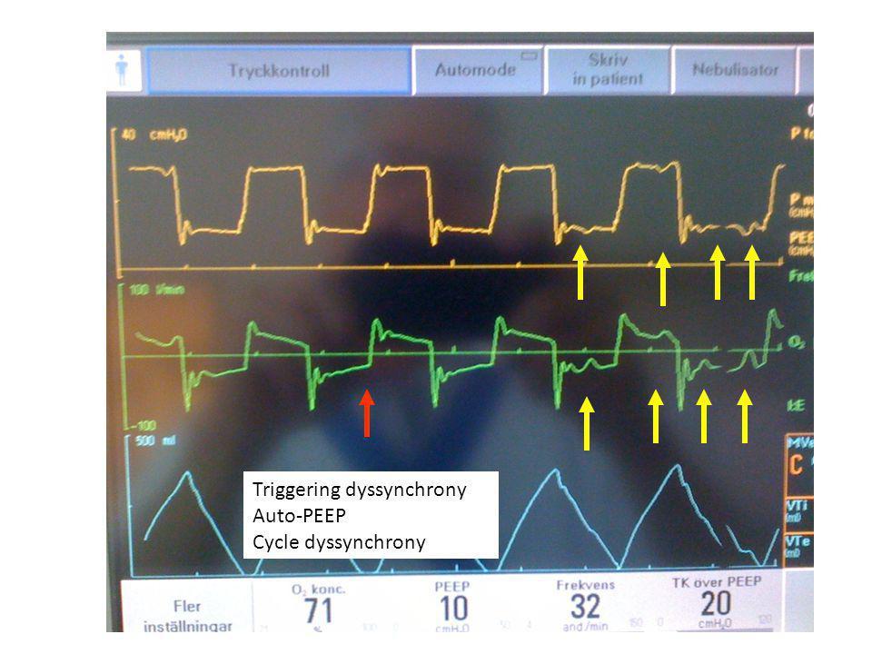 Triggering dyssynchrony Auto-PEEP Cycle dyssynchrony