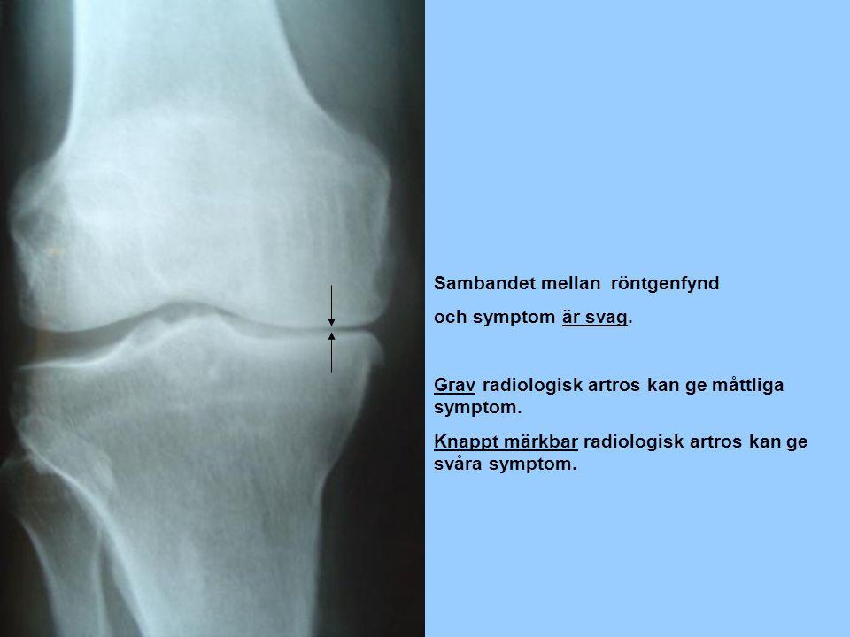 Sambandet mellan röntgenfynd och symptom är svag.Grav radiologisk artros kan ge måttliga symptom.