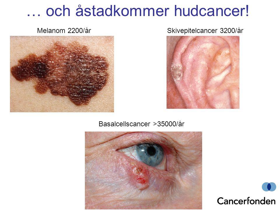 … och åstadkommer hudcancer! Melanom 2200/årSkivepitelcancer 3200/år Basalcellscancer >35000/år