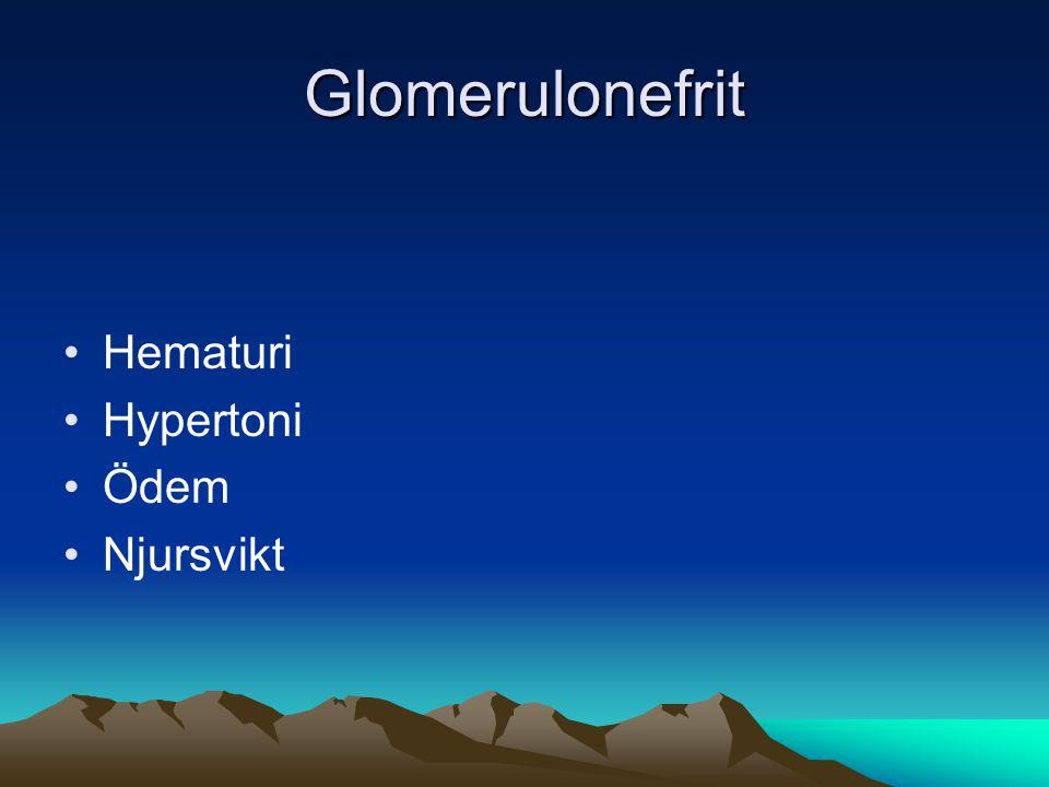 Glomerulonefrit •Hematuri •Hypertoni •Ödem •Njursvikt