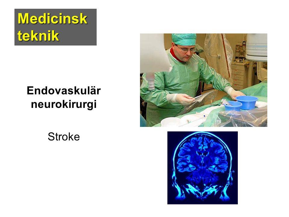 Medicinsk teknik Endovaskulär neurokirurgi Stroke