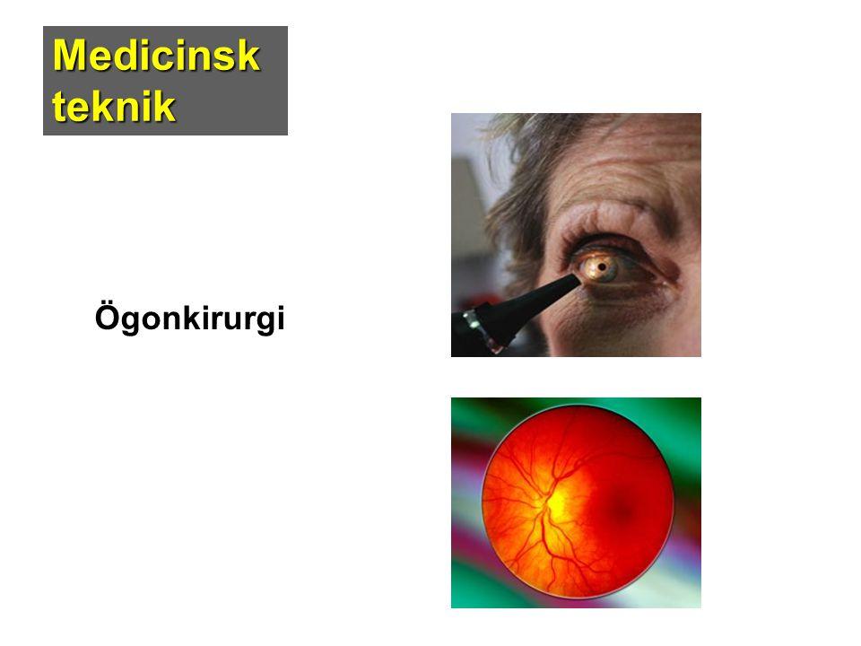 Medicinsk teknik Ögonkirurgi