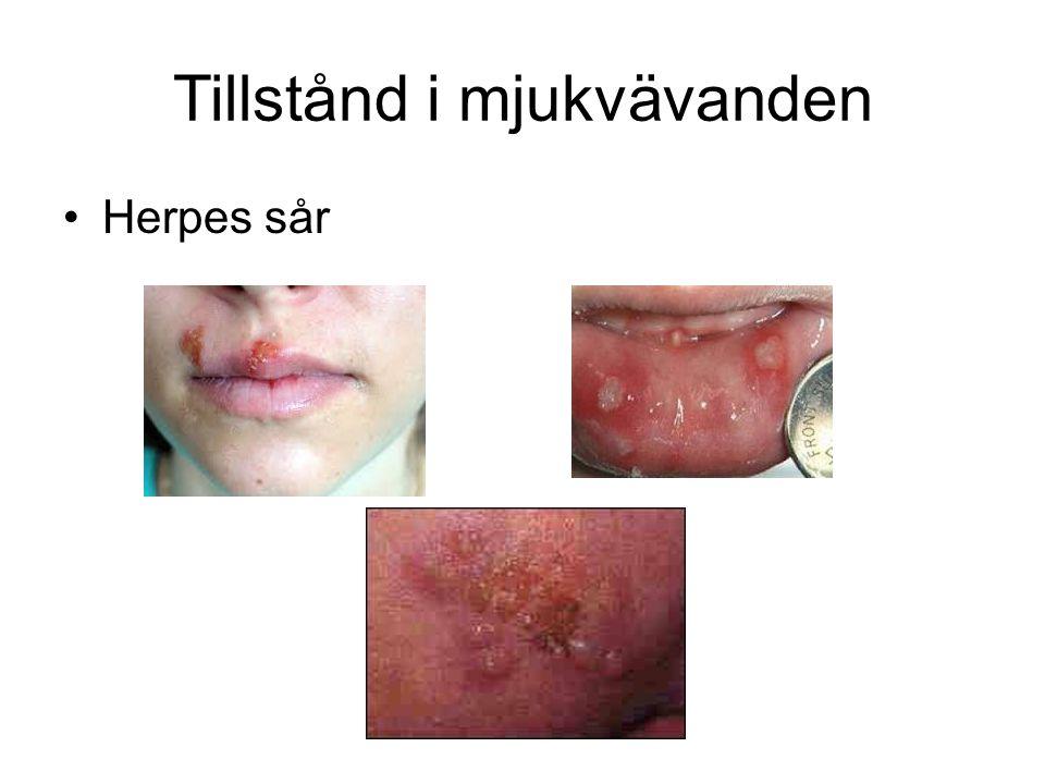 Tillstånd i mjukvävanden •Herpes sår