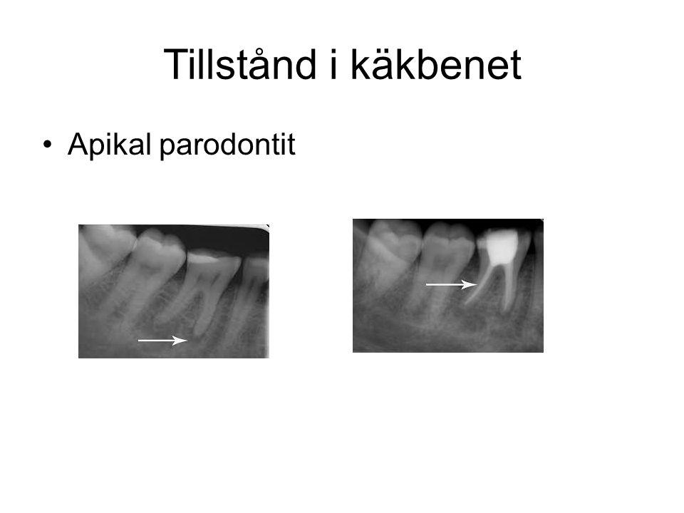 Tillstånd i käkbenet •Apikal parodontit