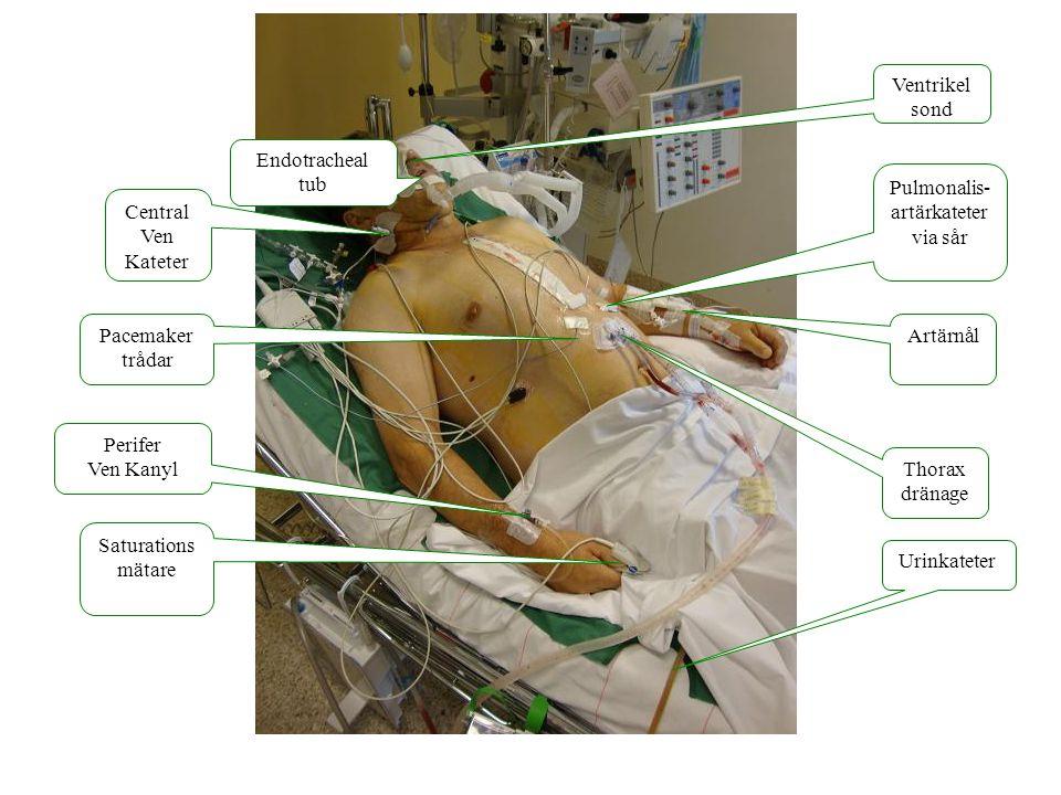 EKG Artärtryck Pulmonalis (PA) tryck Centralt ven tryck (CVP) Saturation (SO2) Medelartär tryck (MAP)