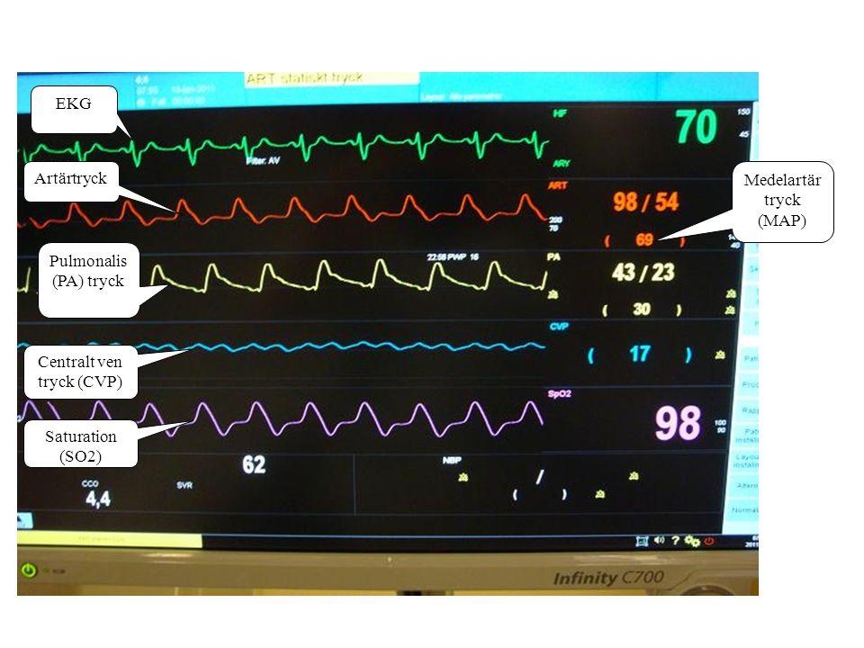 Cirkulation EKG –Rytm –Frekvens –Extraslag – Extern pacemaker Artärblodtryck –Systoliskt 90-140 mm Hg / MAP 65-70 mm Hg –< 90 mm Hg: Risk för försämrad cirkulation, cerebralt, perifert, till njurarna och till coronarkärlen –> 140 mm Hg: Risk för blödning, ökad belastning för hjärtat och på anastomoserna