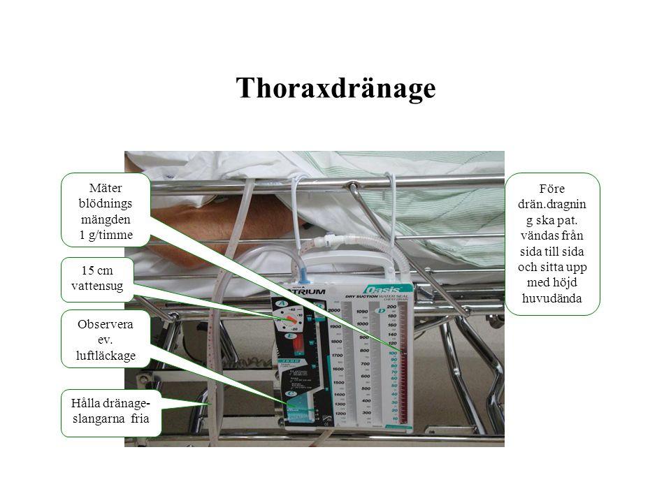 Thoraxdränage Mäter blödnings mängden 1 g/timme Observera ev. luftläckage Hålla dränage- slangarna fria 15 cm vattensug Före drän.dragnin g ska pat. v