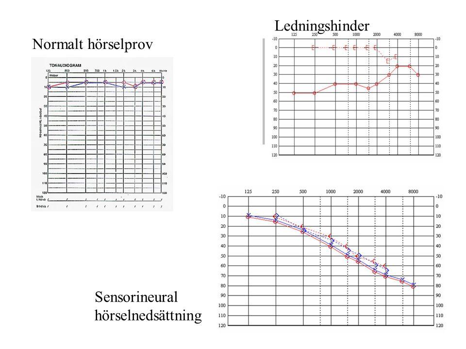 Normalt hörselprov Ledningshinder Sensorineural hörselnedsättning
