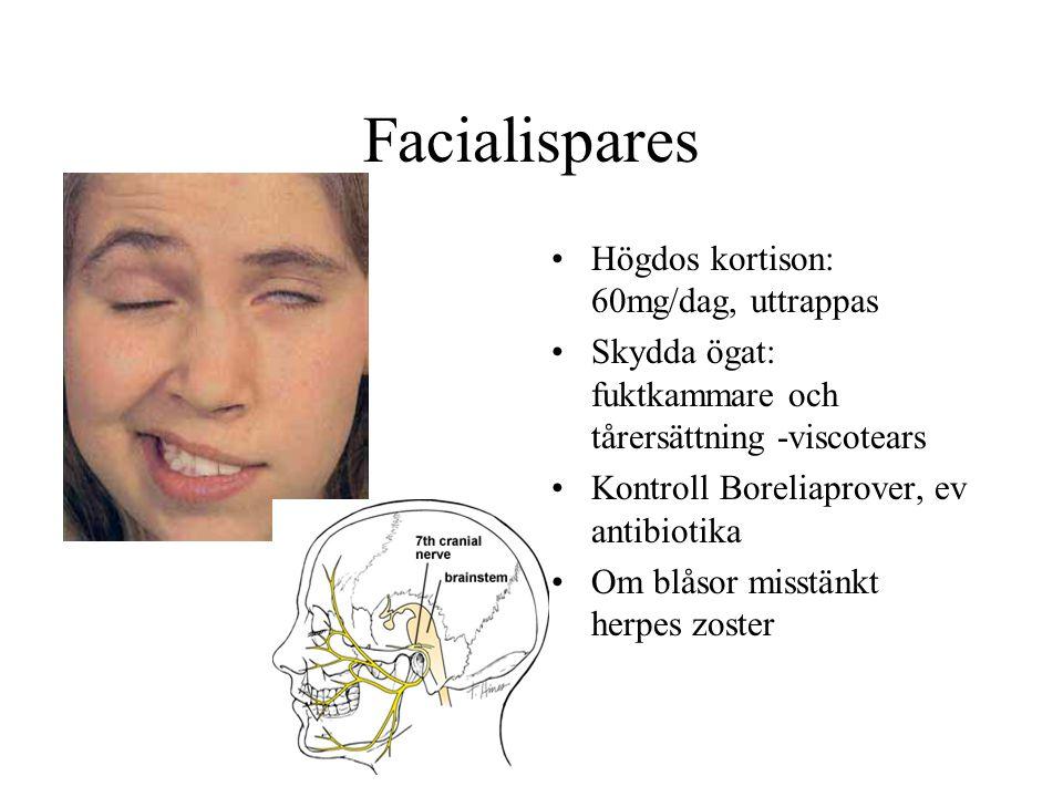Facialispares •Högdos kortison: 60mg/dag, uttrappas •Skydda ögat: fuktkammare och tårersättning -viscotears •Kontroll Boreliaprover, ev antibiotika •O