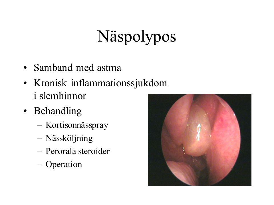 Näspolypos •Samband med astma •Kronisk inflammationssjukdom i slemhinnor •Behandling –Kortisonnässpray –Nässköljning –Perorala steroider –Operation